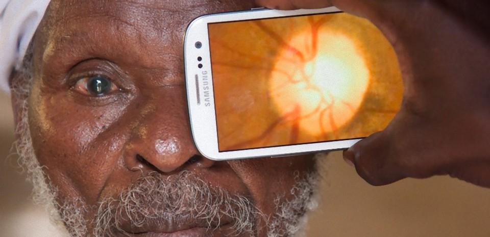 PeekVision, l'appareil qui transforme votre smartphone en scanner oculaire